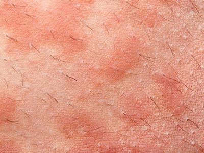 じんましん、アトピー性皮膚炎